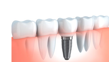 Implantes dentales <i>Marbella</i>